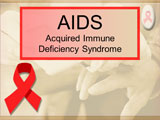 AIDS - Sample Presentations