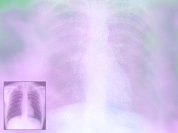 Chest X-Ray PowerPoint Templates